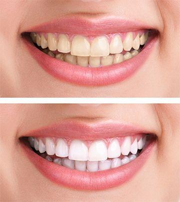 Zahnpleaching Bild
